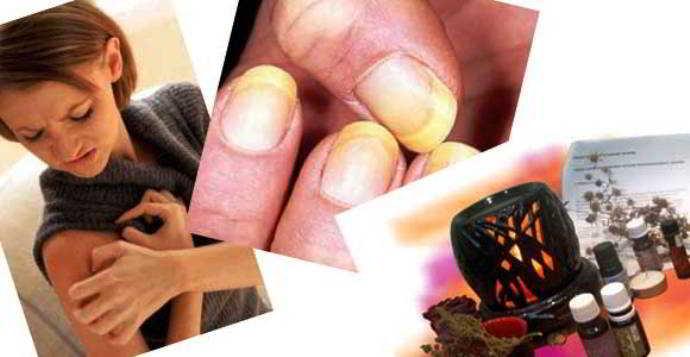 монарда лечебные свойства настойка